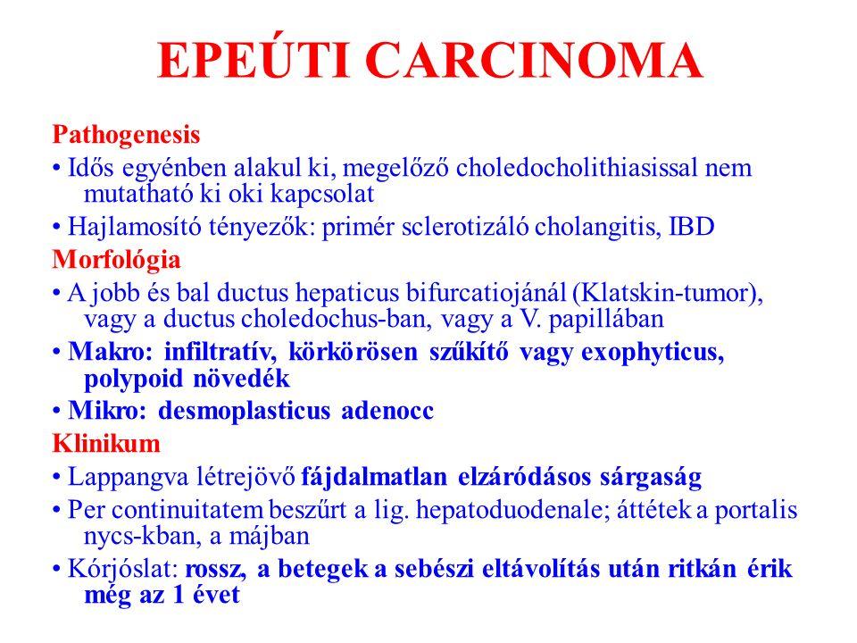 EPEÚTI CARCINOMA Pathogenesis