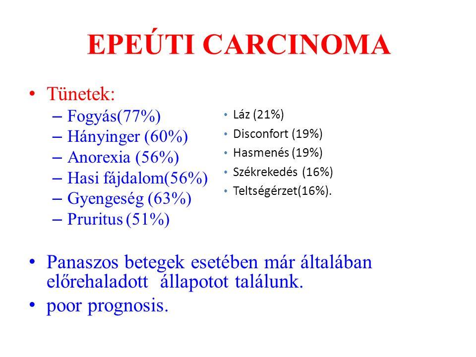 EPEÚTI CARCINOMA Tünetek: