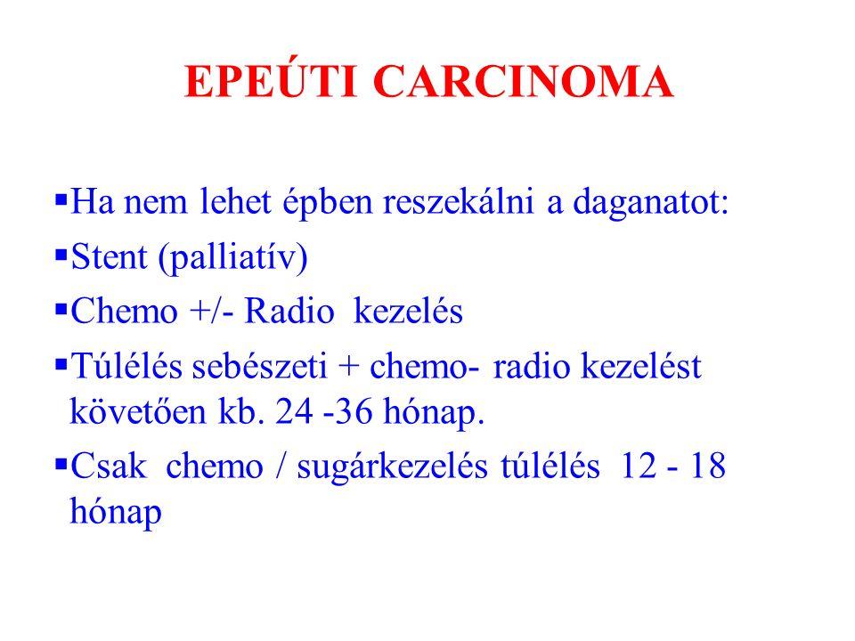 EPEÚTI CARCINOMA Ha nem lehet épben reszekálni a daganatot: