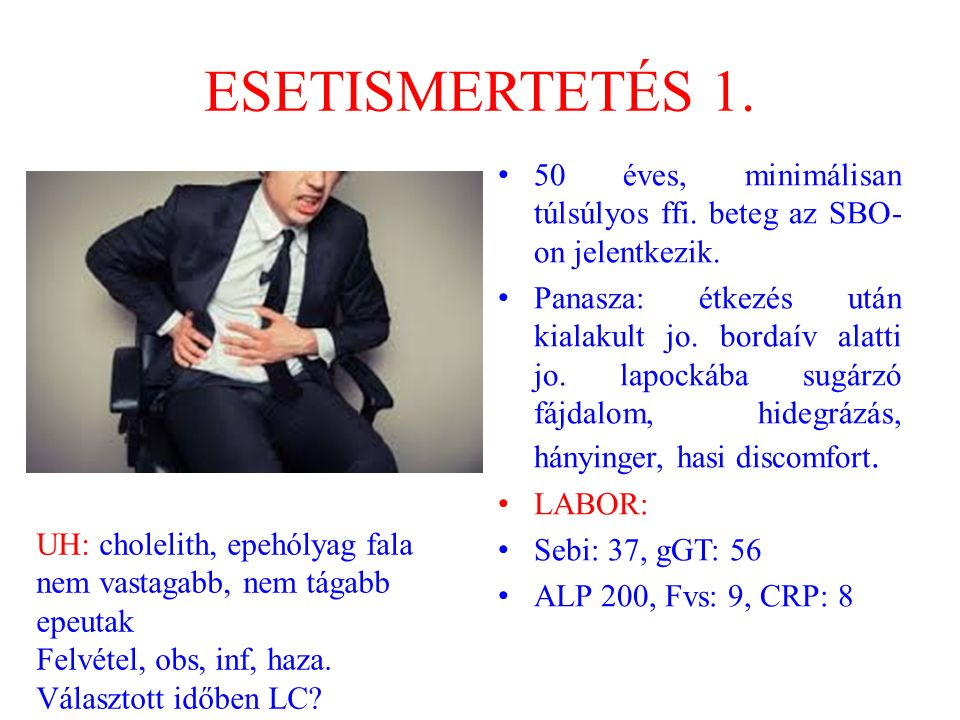 ESETISMERTETÉS 1. 50 éves, minimálisan túlsúlyos ffi. beteg az SBO-on jelentkezik.
