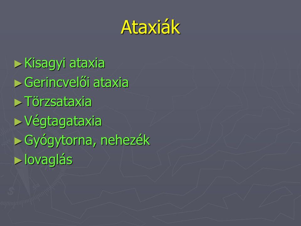 Ataxiák Kisagyi ataxia Gerincvelői ataxia Törzsataxia Végtagataxia