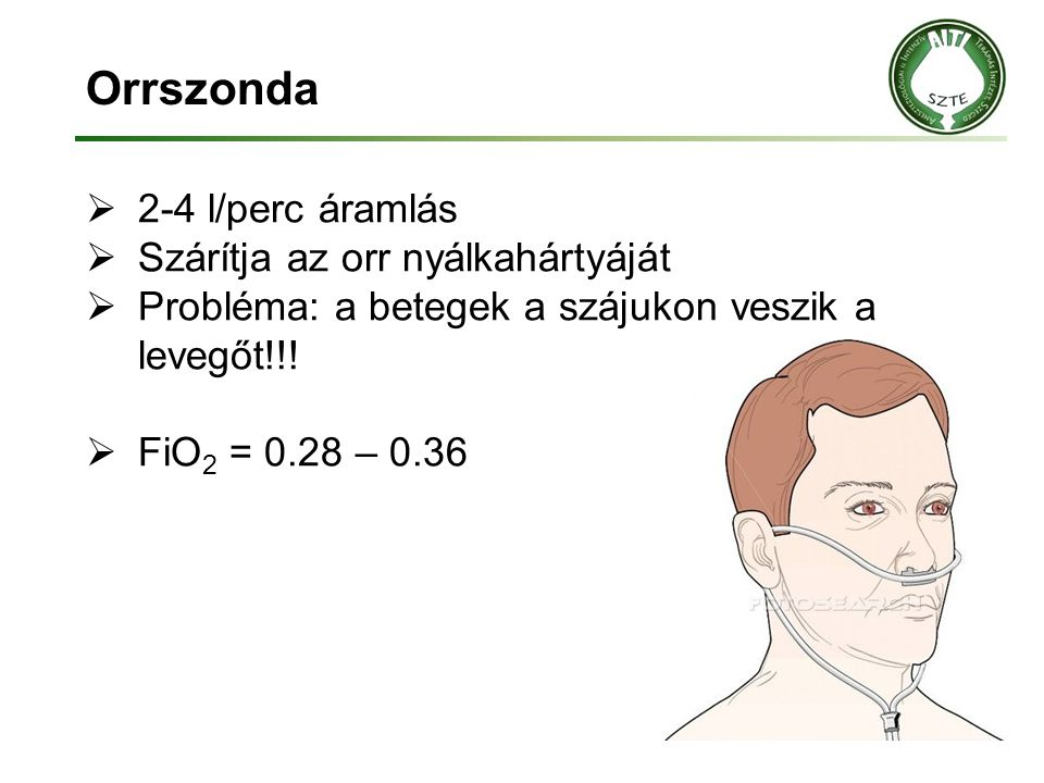 Orrszonda 2-4 l/perc áramlás Szárítja az orr nyálkahártyáját