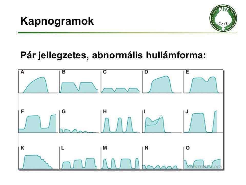 Kapnogramok Pár jellegzetes, abnormális hullámforma: