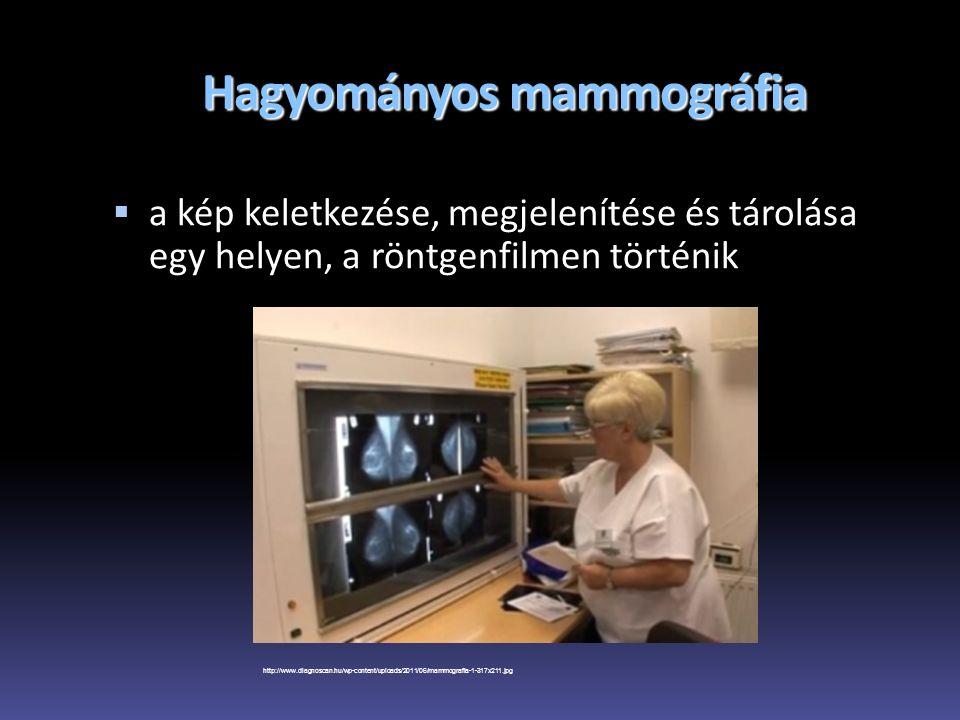 Hagyományos mammográfia