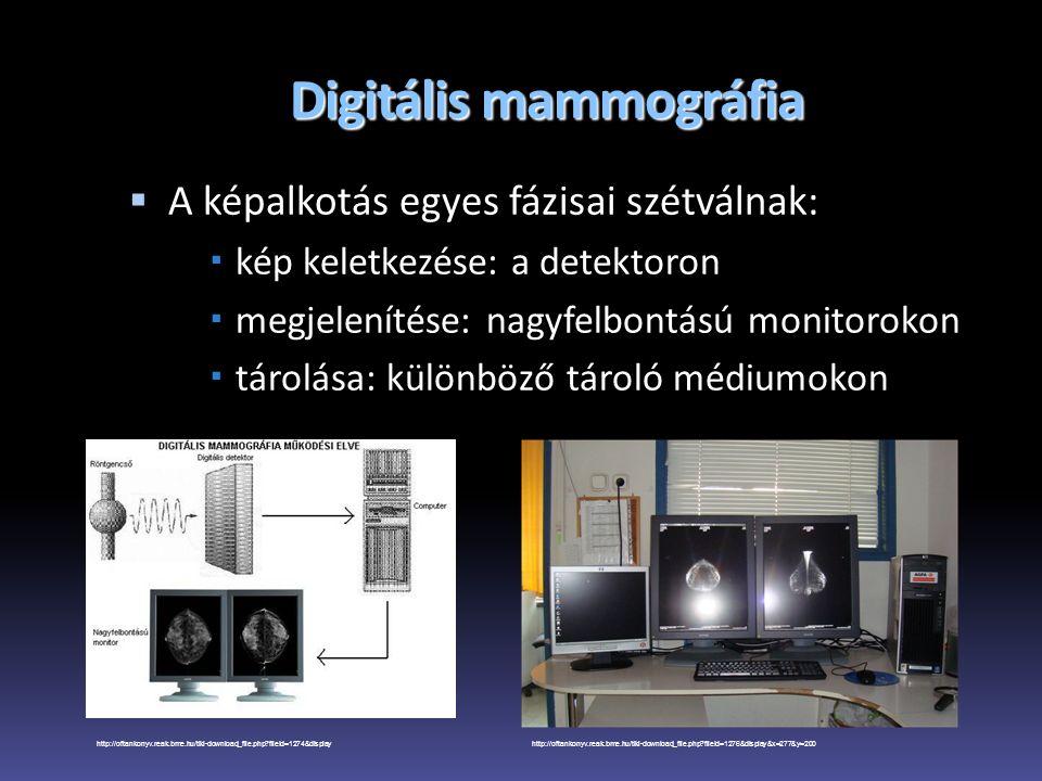 Digitális mammográfia