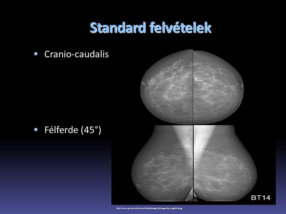 Standard felvételek Cranio-caudalis Félferde (45°)