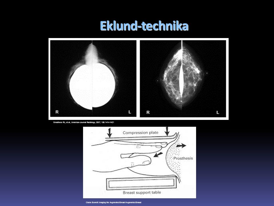 Eklund-technika Smathers RL, et.al., American Journal Radiology, 2007, 188:1414-1421.