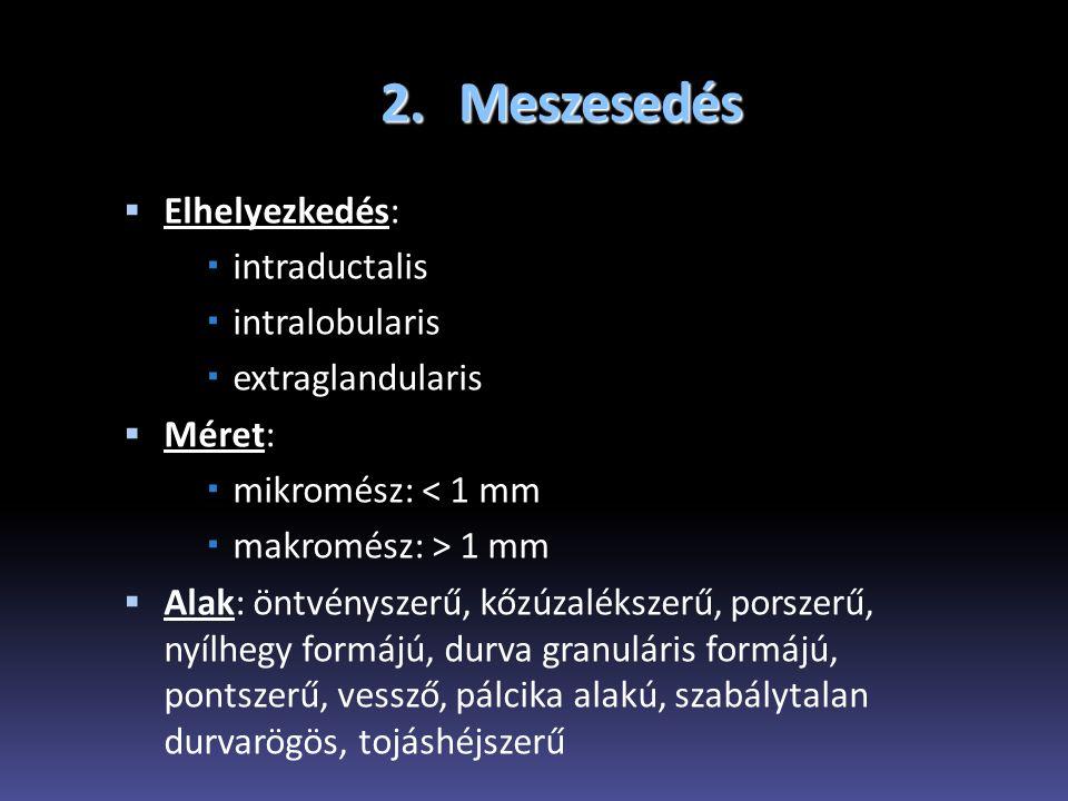 2. Meszesedés Elhelyezkedés: intraductalis intralobularis