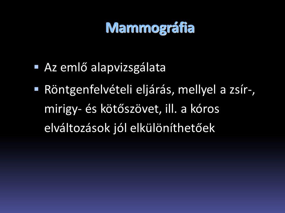 Mammográfia Az emlő alapvizsgálata