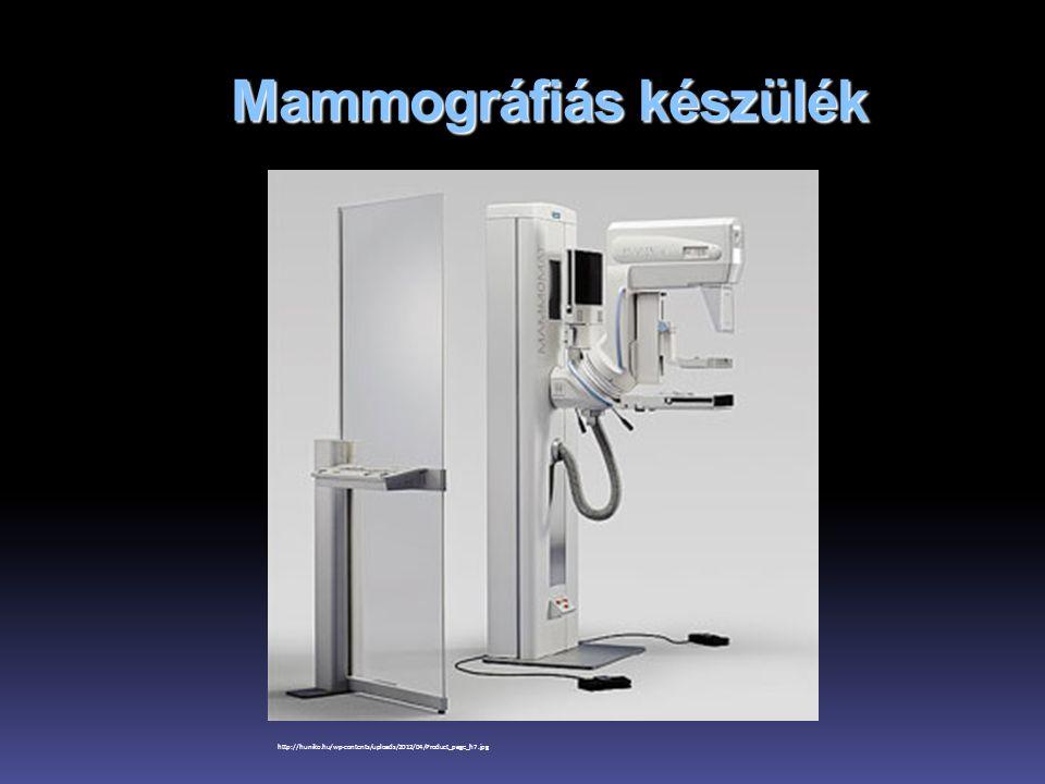Mammográfiás készülék