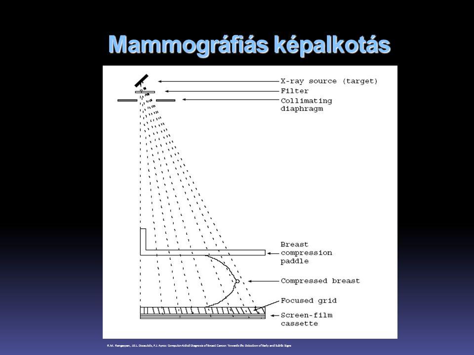 Mammográfiás képalkotás