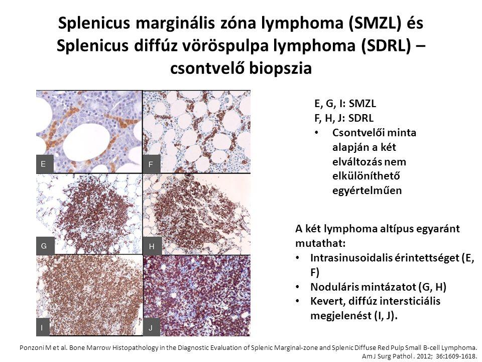 Splenicus marginális zóna lymphoma (SMZL) és Splenicus diffúz vöröspulpa lymphoma (SDRL) – csontvelő biopszia