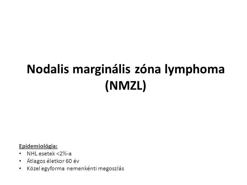 Nodalis marginális zóna lymphoma (NMZL)