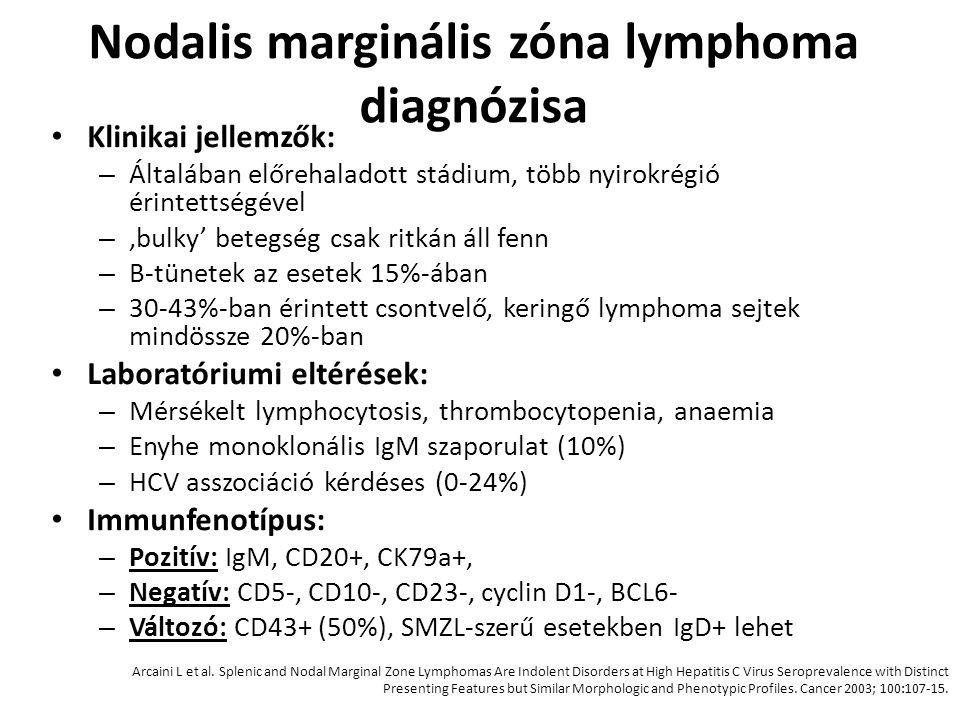 Nodalis marginális zóna lymphoma diagnózisa