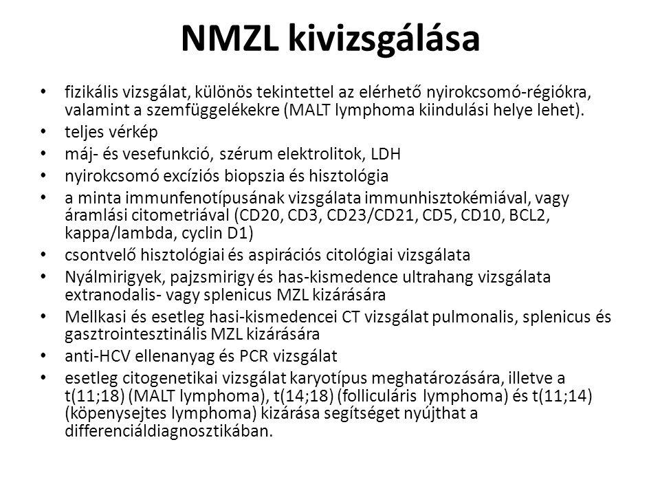 NMZL kivizsgálása