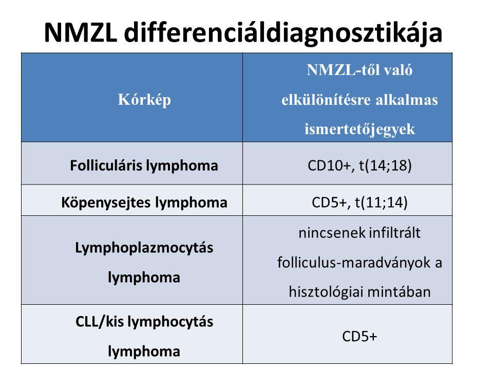 NMZL differenciáldiagnosztikája