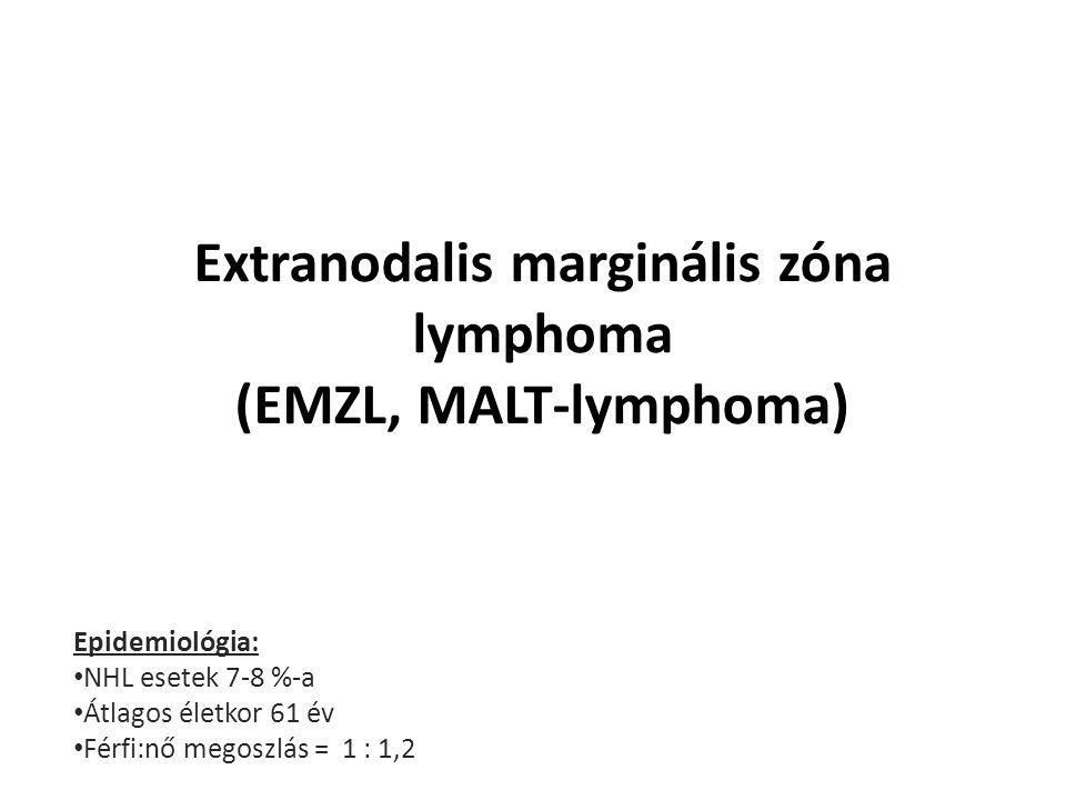 Extranodalis marginális zóna lymphoma (EMZL, MALT-lymphoma)
