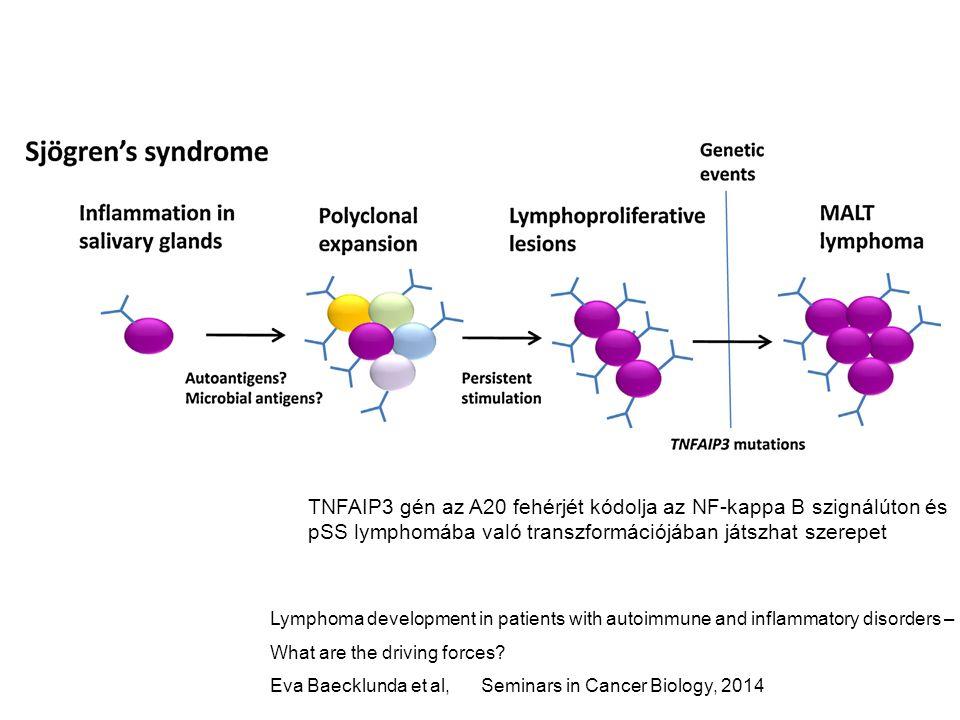 TNFAIP3 gén az A20 fehérjét kódolja az NF-kappa B szignálúton és pSS lymphomába való transzformációjában játszhat szerepet