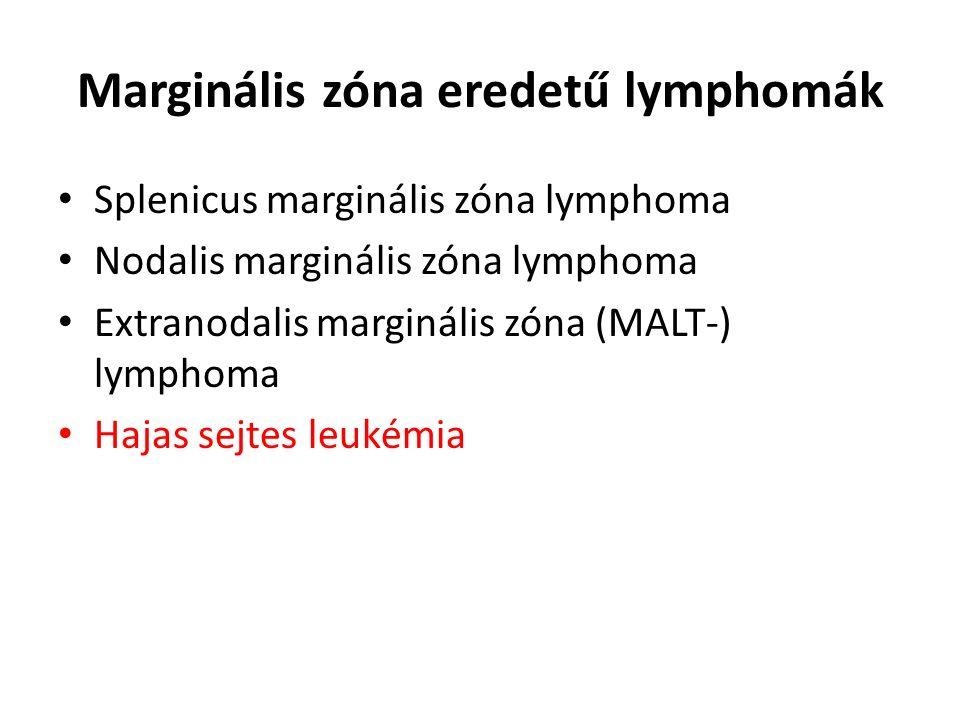Marginális zóna eredetű lymphomák