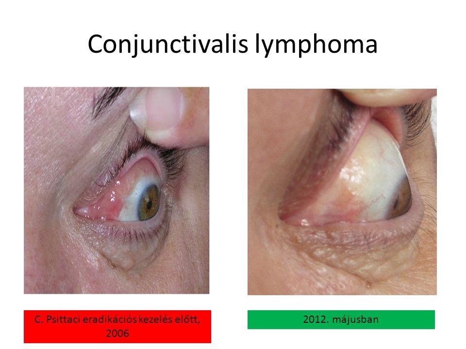 Conjunctivalis lymphoma