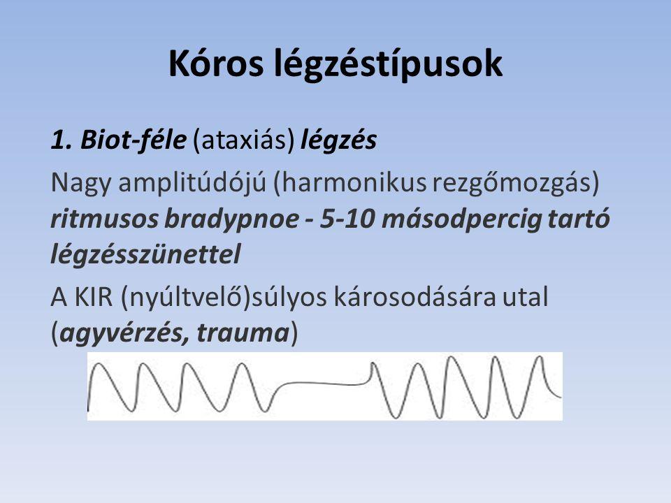 Kóros légzéstípusok 1. Biot-féle (ataxiás) légzés
