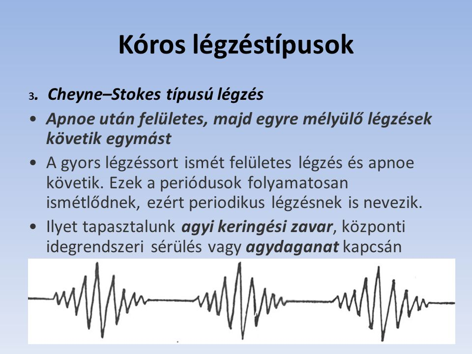 Kóros légzéstípusok 3. Cheyne–Stokes típusú légzés. Apnoe után felületes, majd egyre mélyülő légzések követik egymást.