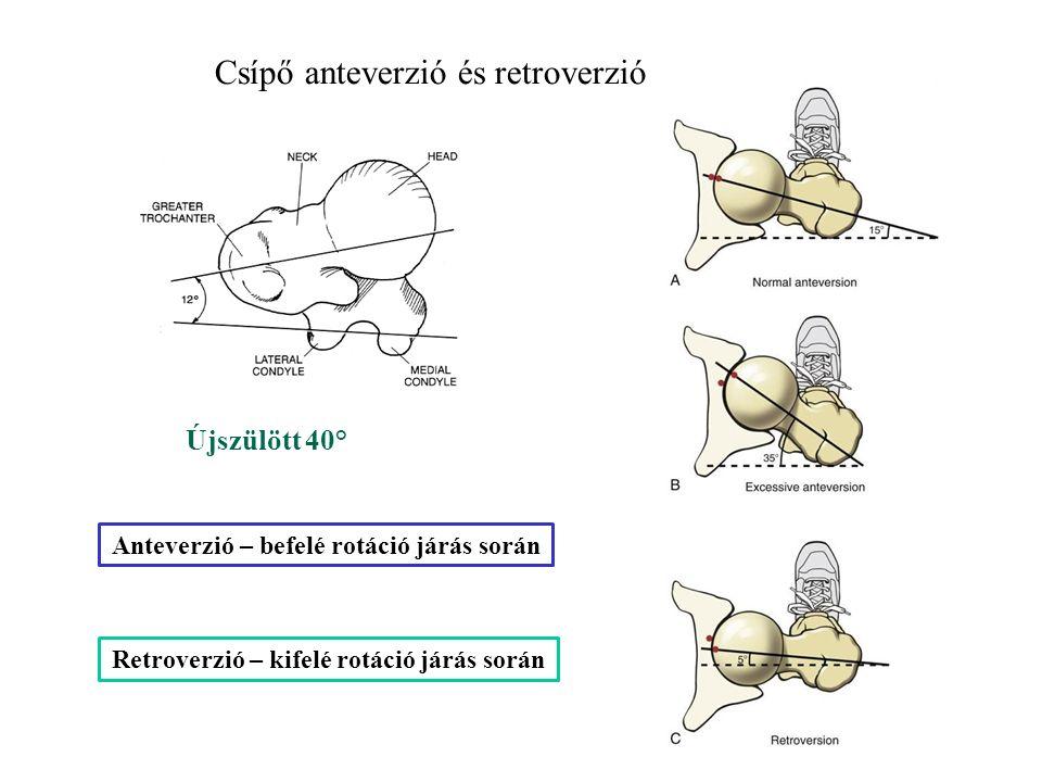 Csípő anteverzió és retroverzió