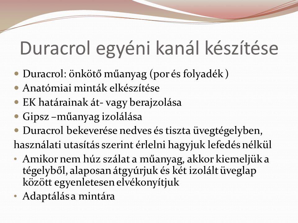 Duracrol egyéni kanál készítése