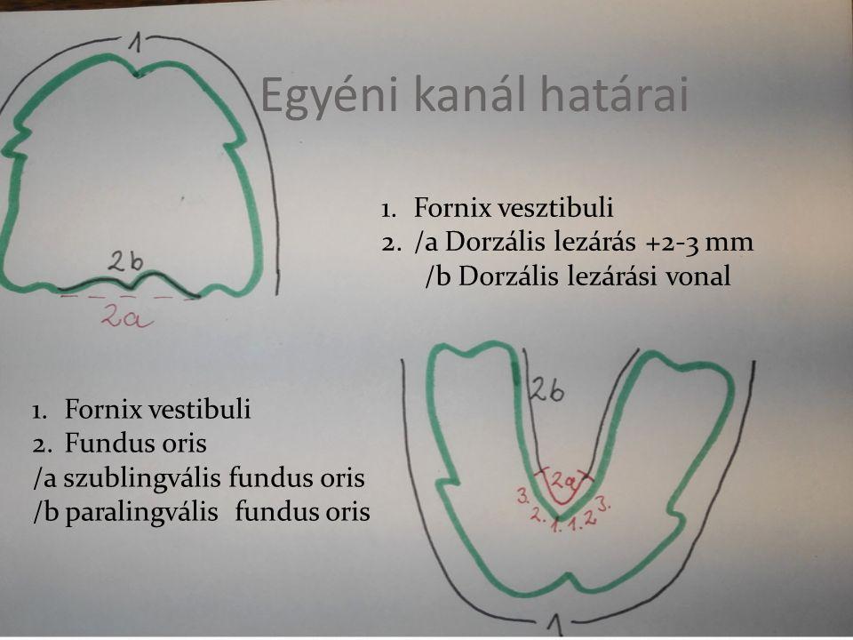Egyéni kanál határai Fornix vesztibuli /a Dorzális lezárás +2-3 mm