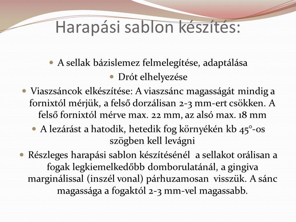 Harapási sablon készítés: