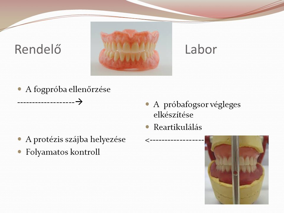 Rendelő Labor A fogpróba ellenőrzése -------------------
