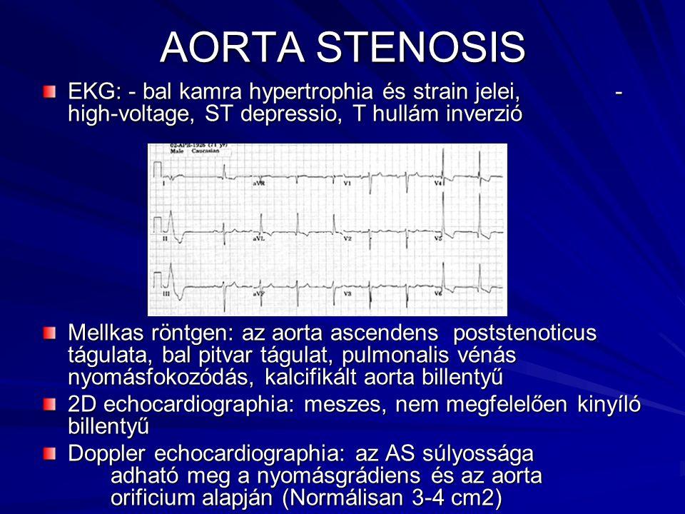AORTA STENOSIS EKG: - bal kamra hypertrophia és strain jelei, - high-voltage, ST depressio, T hullám inverzió.
