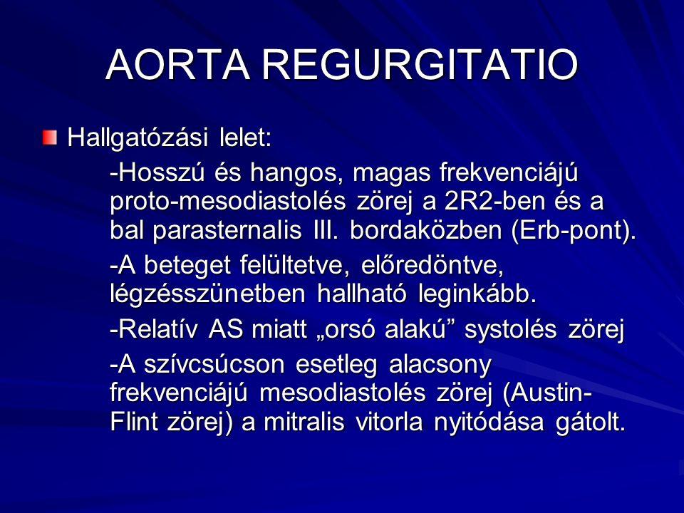 AORTA REGURGITATIO Hallgatózási lelet: