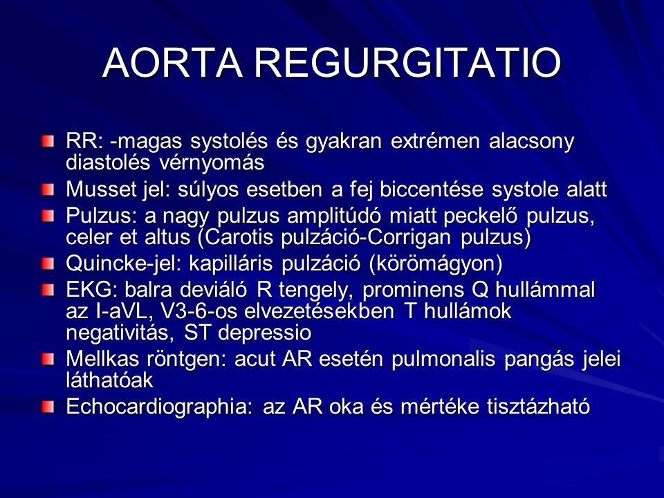 AORTA REGURGITATIO RR: -magas systolés és gyakran extrémen alacsony diastolés vérnyomás. Musset jel: súlyos esetben a fej biccentése systole alatt.
