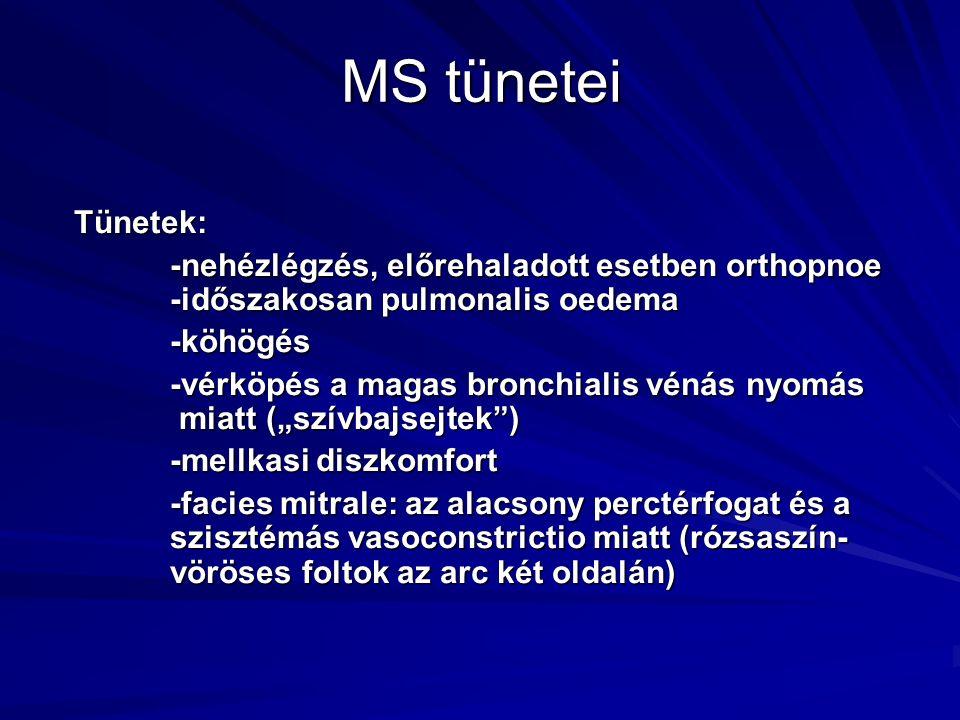 MS tünetei Tünetek: -nehézlégzés, előrehaladott esetben orthopnoe -időszakosan pulmonalis oedema. -köhögés.