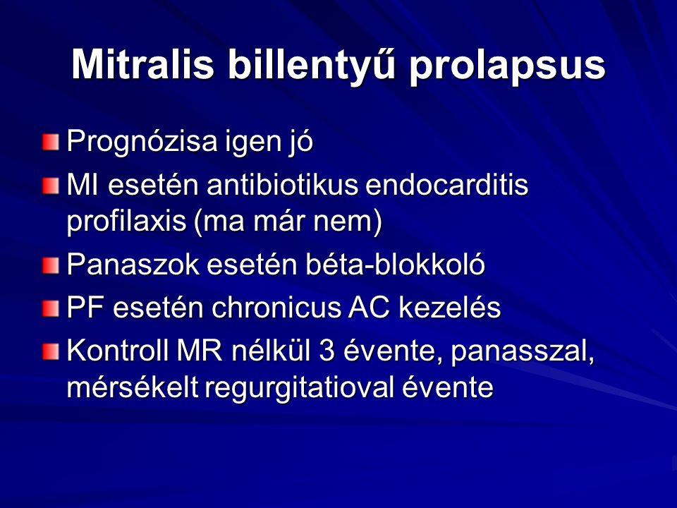 Mitralis billentyű prolapsus
