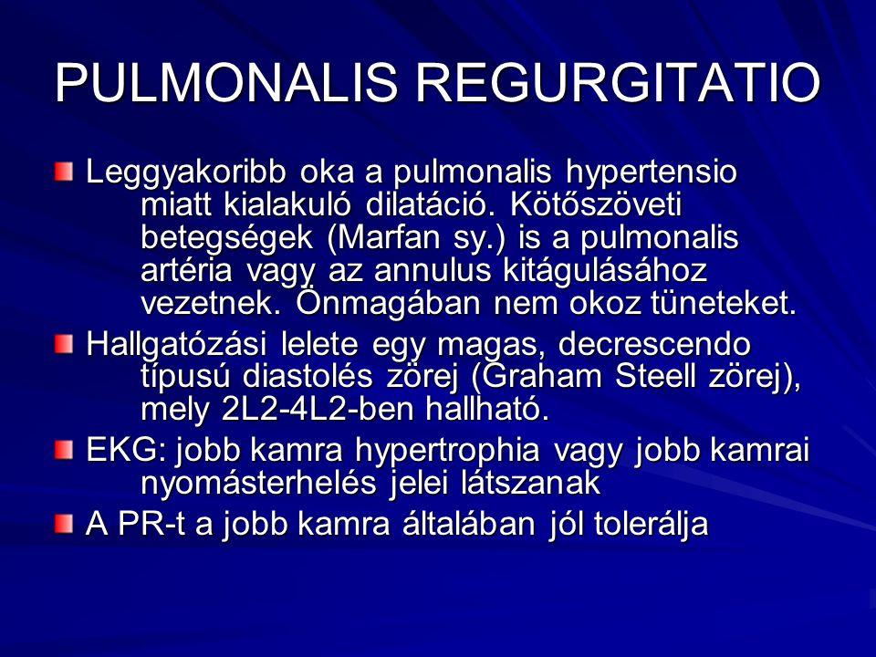 PULMONALIS REGURGITATIO