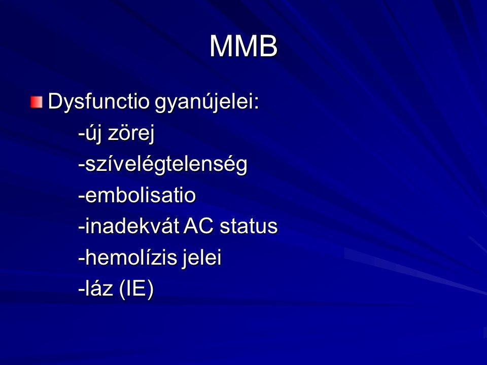 MMB Dysfunctio gyanújelei: -új zörej -szívelégtelenség -embolisatio