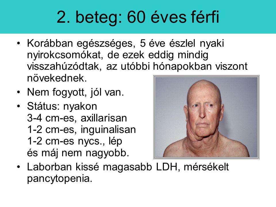 2. beteg: 60 éves férfi