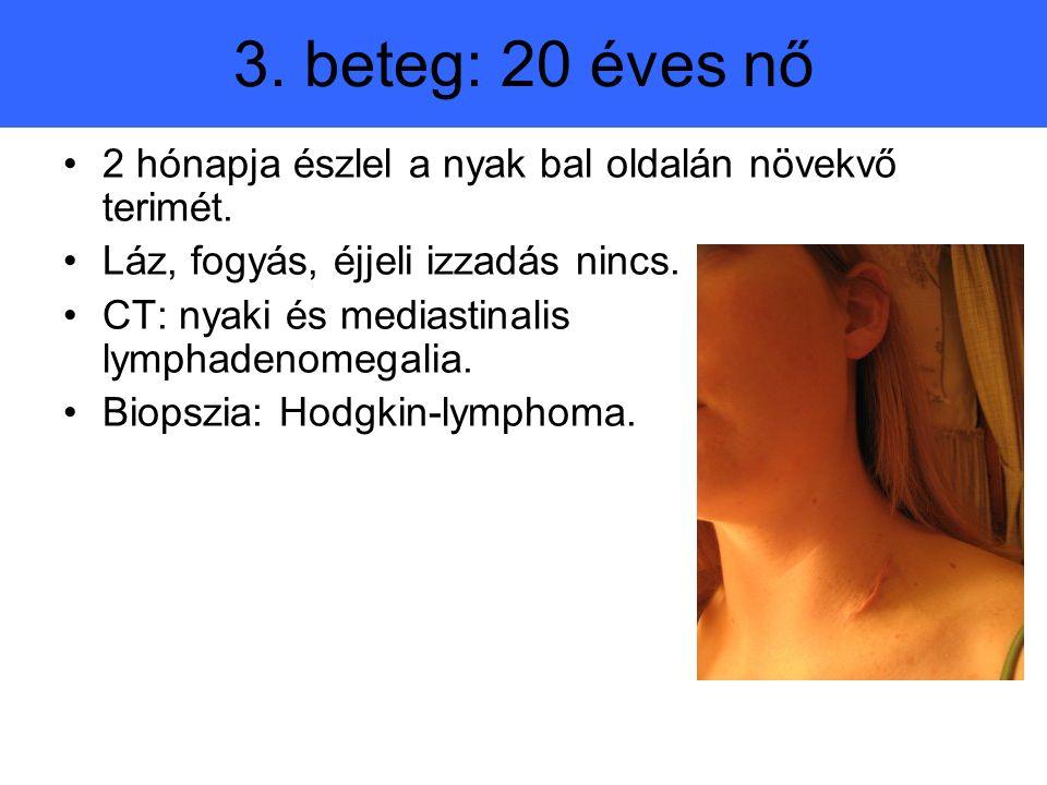 3. beteg: 20 éves nő 2 hónapja észlel a nyak bal oldalán növekvő terimét. Láz, fogyás, éjjeli izzadás nincs.