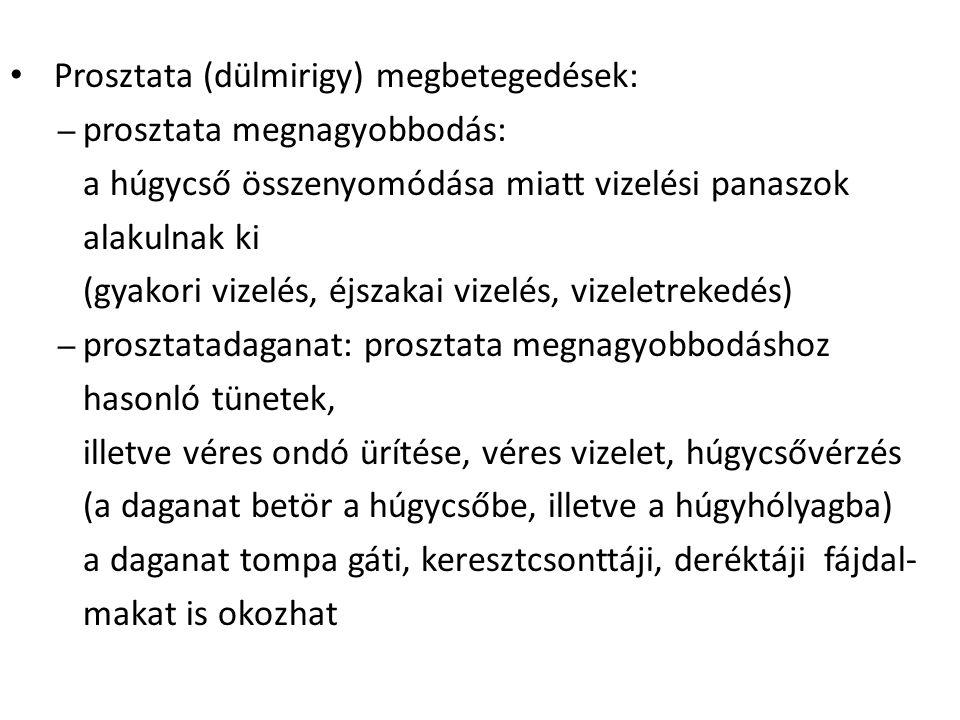 Prosztata (dülmirigy) megbetegedések: