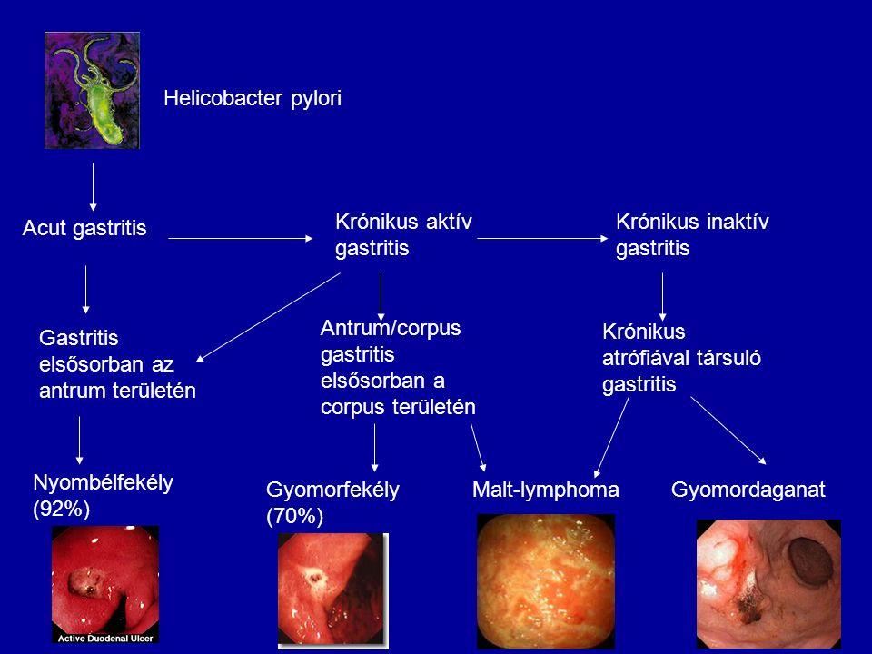 Acut gastritis Helicobacter pylori. Krónikus aktív gastritis. Krónikus inaktív gastritis. Gastritis elsősorban az antrum területén.