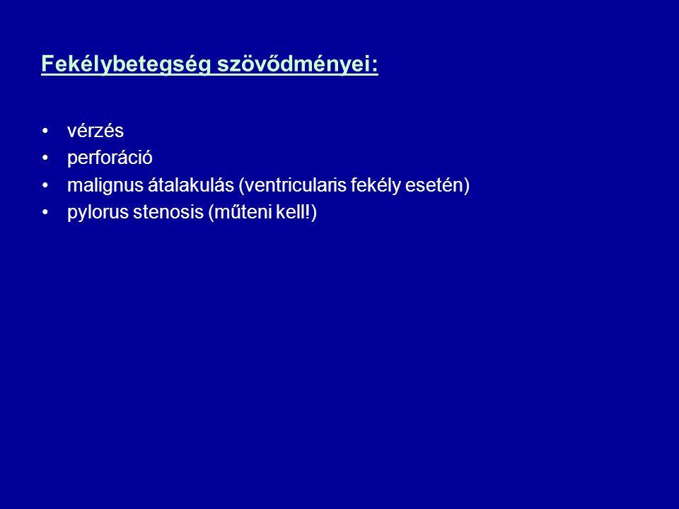 Fekélybetegség szövődményei: