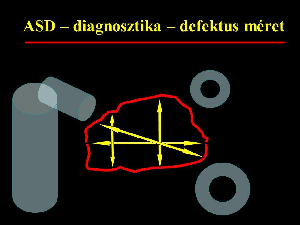 ASD – diagnosztika – defektus méret