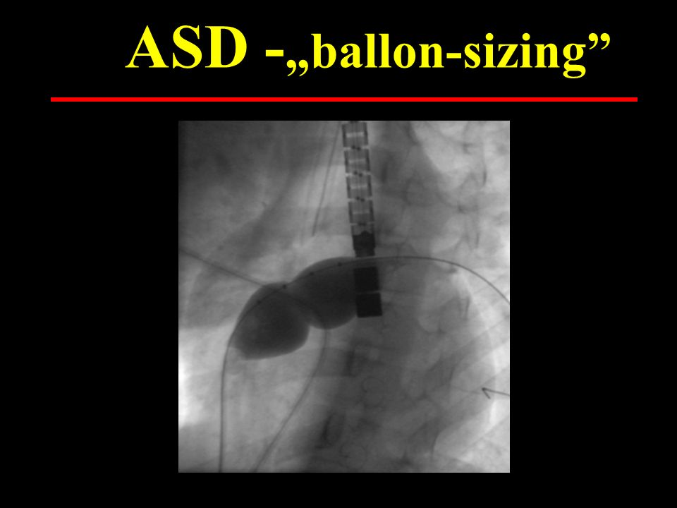 """ASD -""""ballon-sizing"""