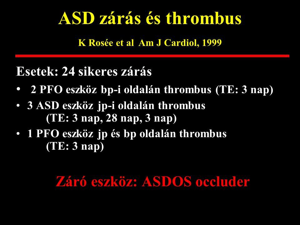 ASD zárás és thrombus K Rosée et al Am J Cardiol, 1999