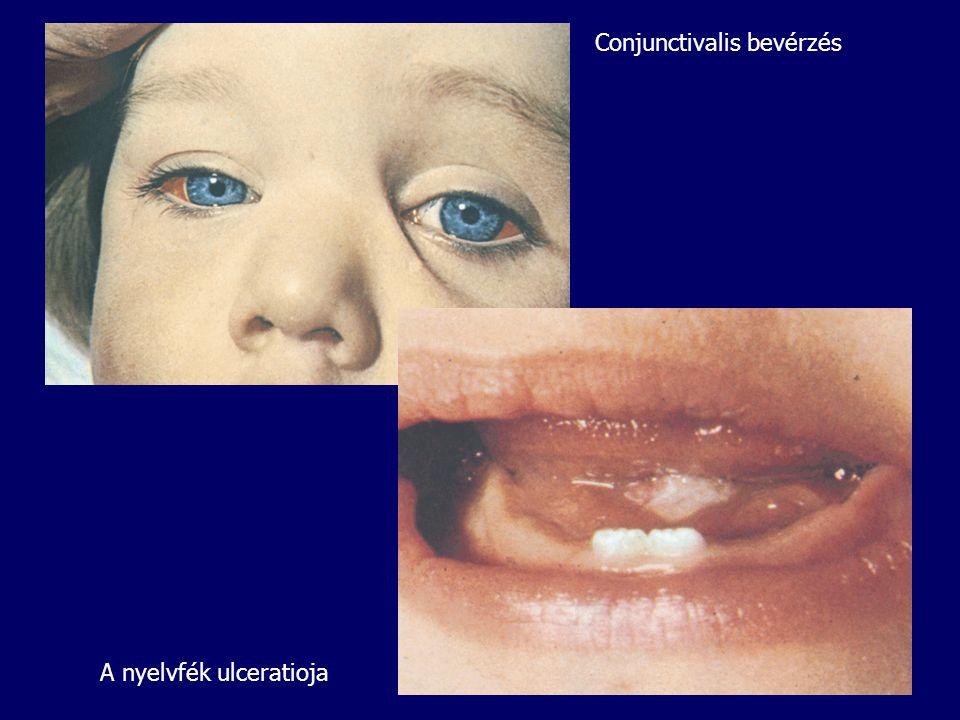 Conjunctivalis bevérzés
