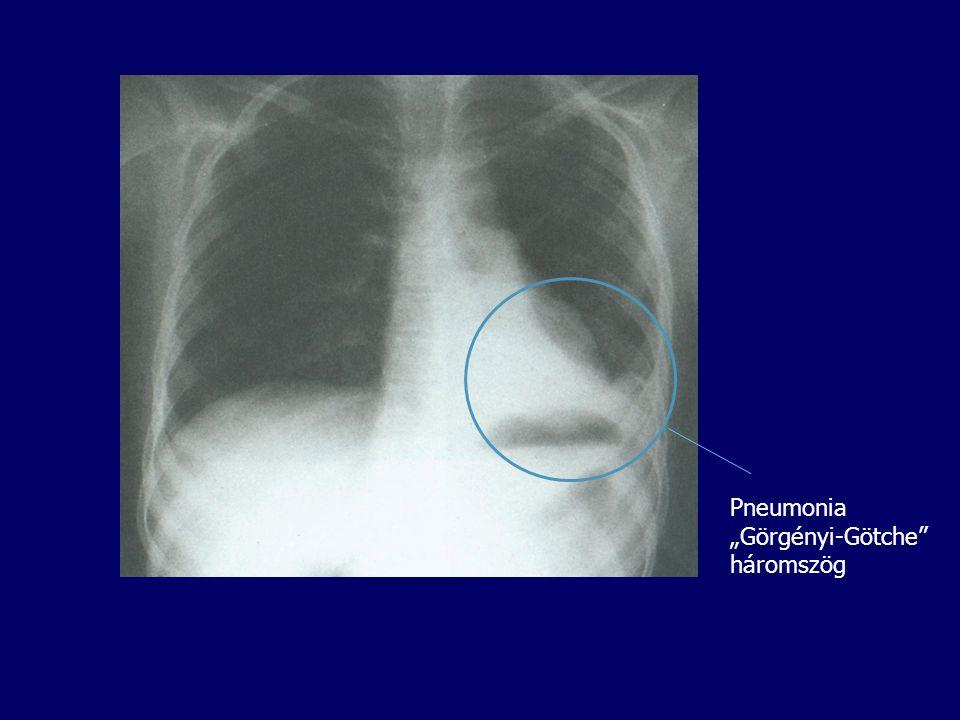 """Pneumonia """"Görgényi-Götche háromszög"""