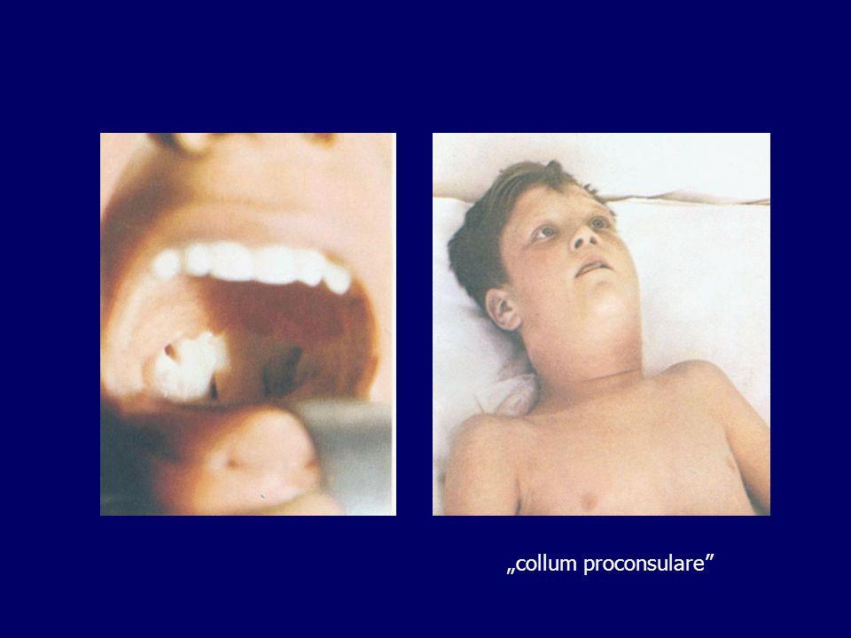 """""""collum proconsulare"""