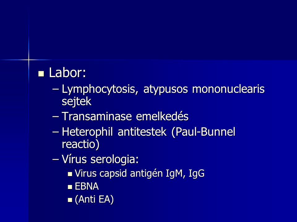Labor: Lymphocytosis, atypusos mononuclearis sejtek